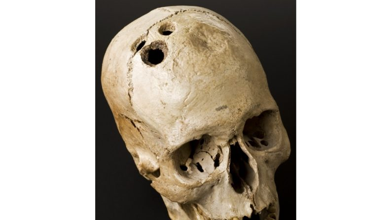 Une technique avancée de chirurgie cérébrale pratiquée il y a 2500 ans