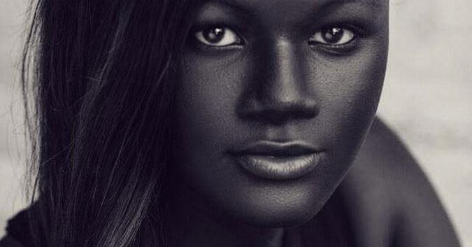 Cette fille a été malmenée pour sa couleur de peau extrême, elle est maintenant mannequin