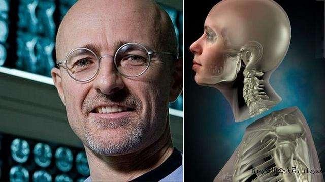 La première transplantation de tête au monde sera bientôt réalisée sur un patient paraplégique