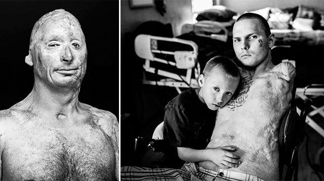 10 photos montrant d'anciens combattants touchés pendant les guerres au Moyen-Orient