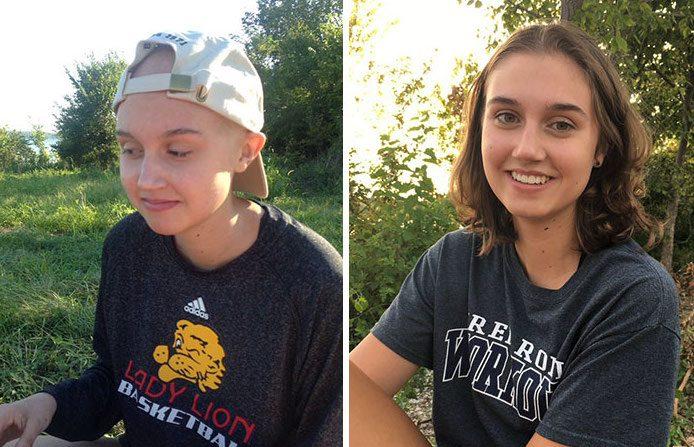 12 photos de survivants du cancer avant et après, qui vous feront apprécier la vie