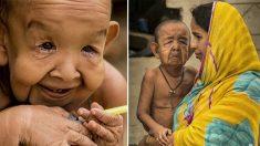 Un enfant de 4 ans ressemble à un homme de 80 ans en raison d'un trouble génétique indéterminé accélérant le vieillissement