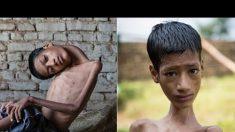 Un garçon avec une «tête tombante» meurt huit mois après une chirurgie qui change sa vie