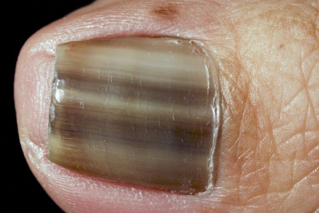 Le blanchiment largile pour la peau de la personne