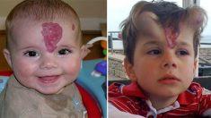 un enfant avec une tache de naissance inhabituelle est implanté avec deux