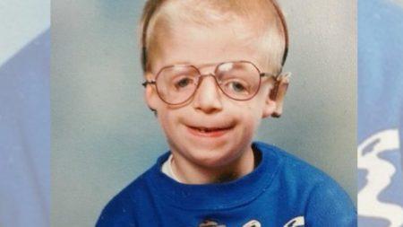 Ses parents l'ont abandonné pour son « visage défiguré » – mais regardez-le 33 ans plus tard
