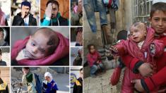 Syrie : un bébé devenu borgne après un raid au centre d'une campagne de solidarité