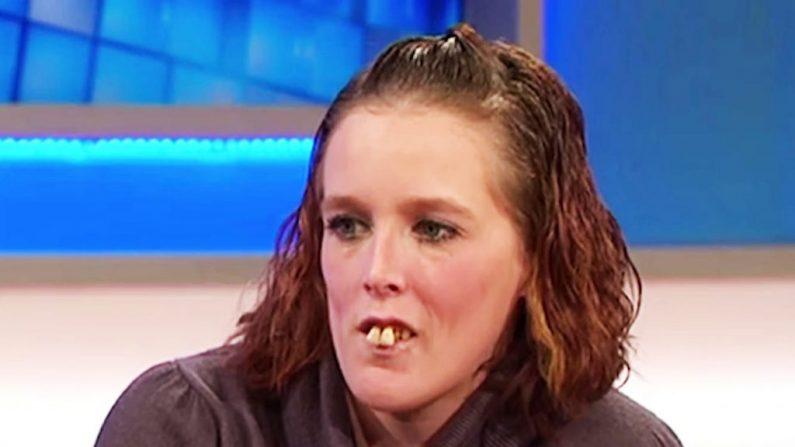 Victime de harcèlements à cause de ses vilaines dents, cette femme apparaît dans un talk show américain – regardez-la maintenant après 10 000 $ de soins dentaires