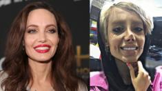 Cette starlette d'Instagram a subi cinquante opérations de chirurgie plastique pour ressembler à Angelina Jolie
