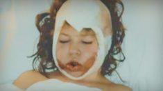 Le visage d'une fille de huit ans est arraché par une ceinture - Onze ans plus tard, son médecin est très touché par ce qu'elle fait