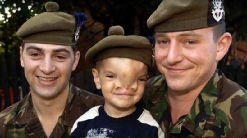 Un militaire britannique décide de lui venir en aide – après son opération, le résultat est bluffant
