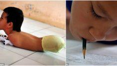 Un garçon né sans membres excelle à des jeux en utilisant son menton – c'est aussi un étudiant hors-pair