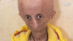 Un garçon atteint d'une maladie rare meurt à 15 ans – «J'ai le rare pouvoir d'être jeune et vieux en même temps»
