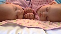 Ces jumelles siamoises reliées par la poitrine ont été séparées lors d'une opération de 12 heures - voici à quoi elles ressemblent 10 ans plus tard