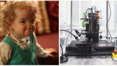 Une fille est née sans nez. Alors, les parents décident d'essayer une chirurgie expérimentale – regardez-la maintenant