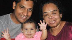 Un Indien prouve que son amour pour sa petite amie n'est pas superficiel et la demande en mariage après que son visage a été défiguré dans un accident