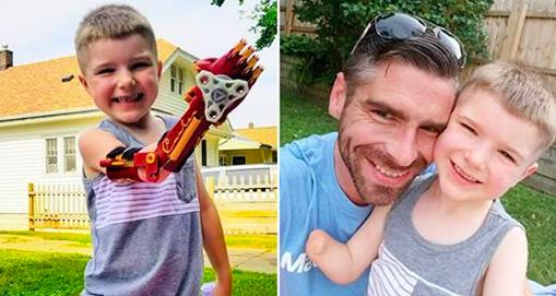 Un papa fabrique un bras 3D «Iron Man» pour son fils amputé, et ce dernier l'adore