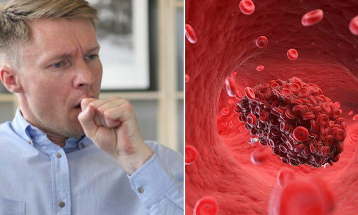Vous toussez mais n'avez pas le rhume? Ces 8 signes et symptômes de caillots sanguins pourraient vous sauver la vie