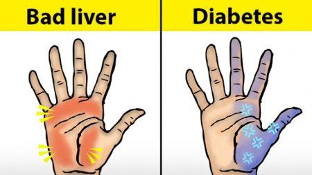 Dix choses que vos mains peuvent révéler au sujet de votre santé – Vos mains ont-elles parfois des fourmis?