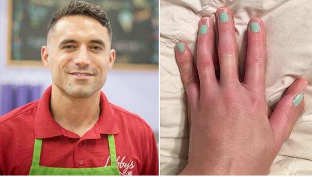 Son épouse perd son petit doigt dans un accident, mais son mari l'aide grâce à une idée ingénieuse