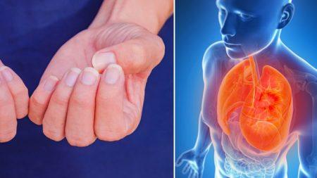 Qu'indiquent vos ongles sur votre santé selon la médecine occidentale?