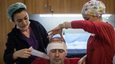 Un homme de 43 ans meurt après une greffe de cheveux