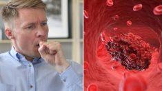 Vous toussez, mais vous n'avez pas de rhume ? Ces 8 symptômes de caillots de sang pourraient vous sauver la vie