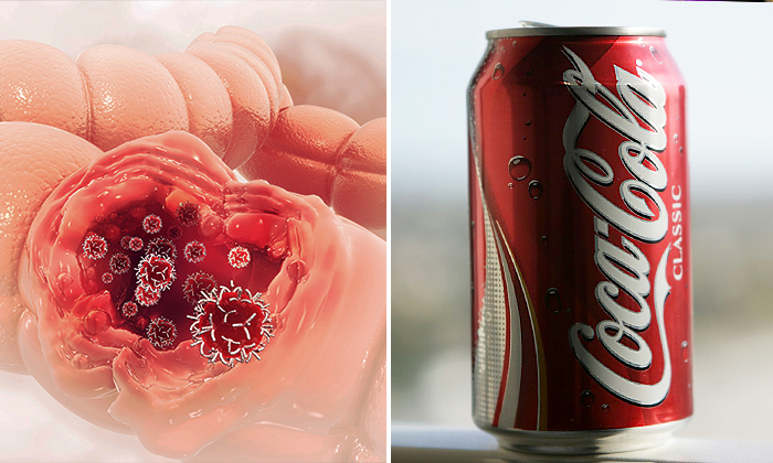 Les boissons sucrées sont mauvaises pour l'intestin et stimulent la croissance des tumeurs cancéreuses