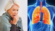 9 signes avant-coureurs du cancer du poumon à surveiller - êtes-vous constamment en train de reprendre votre souffle?
