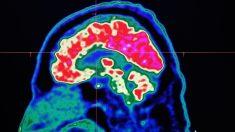 Le mal peu connu des cancérologues: la dépression