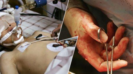 Les médias chinois utilisent la perte douloureuse d'une mère pour promouvoir les pratiques criminelles de transplantation du régime chinois