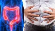 Un homme a de la difficulté à aller à la selle pendant 22 ans - jusqu'à ce que les médecins enlèvent 14kg d'excréments de son intestin