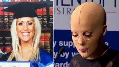 Une femme a été brutalement brûlée vive. 3 ans plus tard, elle retire son masque pour dévoiler son visage parfait
